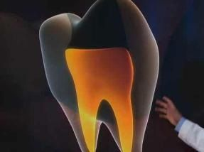 Holistic Dental clinic one to three times dependent on the situation of the root canal.
