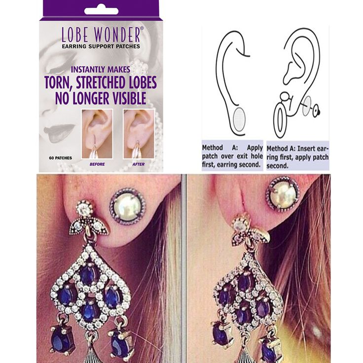 Torn or stretched ear lobes a problem? Don't worry, we have a solution LOBE WONDER patches. Lobe Wonder is an undetectable, hypoallergenic clear patch that is applied to the back of the ear lobe. When pierced by an earring, the patch bears a major part of the earring weight, relieving the ear lobe of the pressure. There is nothing on the market as effective and simple to use as Lobe Wonder. The design allows for a snug and secure fit around the earring post, while taking only seconds to…