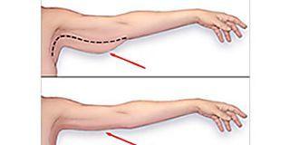 ¿Cómo Reafirmar La Piel Suelta Sin Someterse A Cirugía?