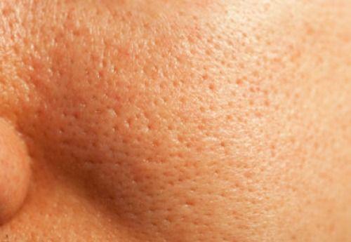 Comment resserrer les pores de manière naturelle ? - Améliore ta Santé