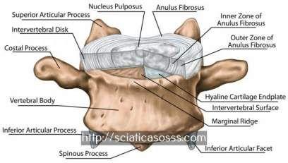 nerf crural cruralgie - sciatique chronique traitement.le nerf sciatique 5653297993