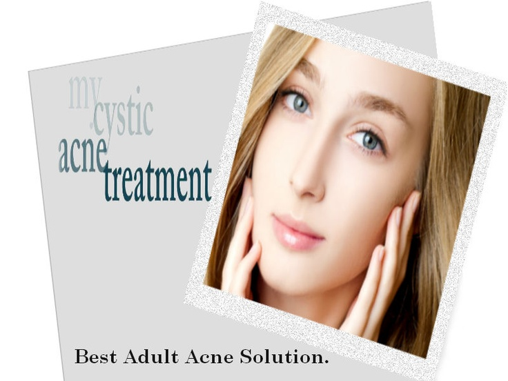 Solution for adult acne
