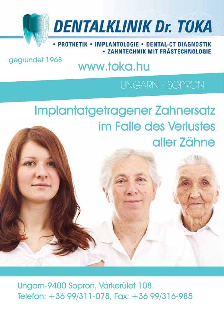 Implantatgetragener Zahnersatz  Dentalklinik Dr. Tóka, Implantatgetragener Zahnersatz im Falle des Verlustes aller Zähne