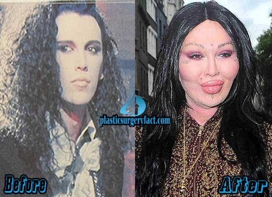 Pete Burns Plastic Surgery Gone Wrong | http://plasticsurgeryfact.com/top-10-pictures-of-celebrity-plastic-surgery-gone-wrong/