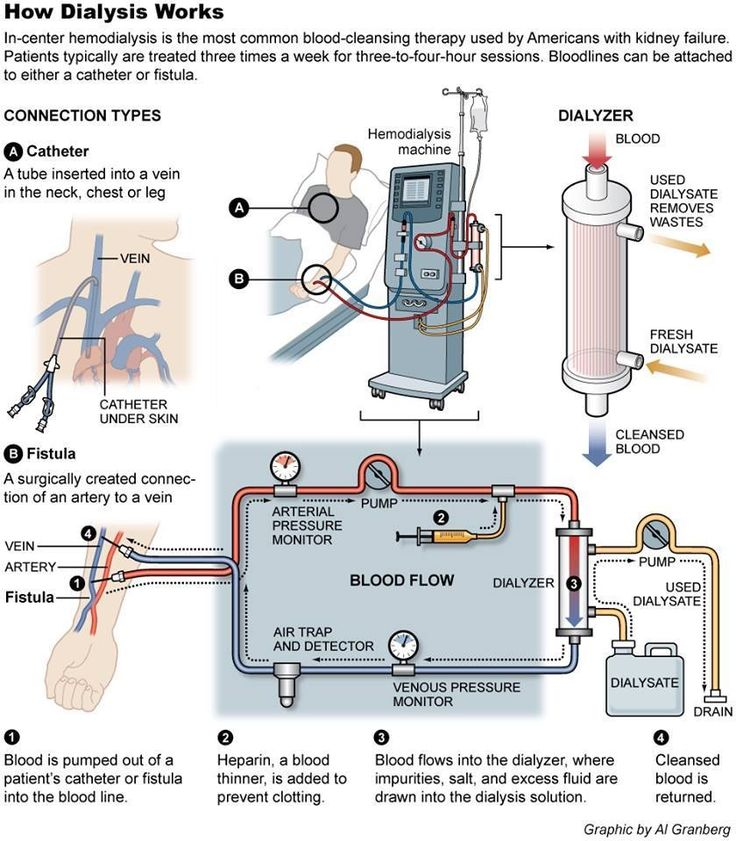 magicmedic:How Dialysis Works