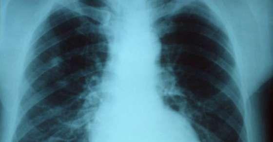 #VitaminC #Vitamin #Pneumonia #AndrewSaul #IrwinStone #Oxygen #Carbon #China #LinusPauling #PaulOffit #Mafia #StaticElectricity #MagicalCreaturesInHarryPotter #Citrus #OrthomolecularMedicine #FredRKlenner #Liver #DireStraits #Physician #EleventhDoctor #Hydrogen #Sweden #Genetics #KarolinskaInstitutet #Scurvy #AtlanticCityNewJersey #Twitter #NorthCarolina #Poliomyelitis #Gram