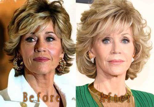 Jane Fonda Plastic Surgery. #janefonda #cosmeticsurgery #plasticsurgery #celebritysurgery #botox
