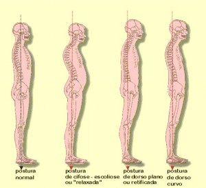Avaliação postural no Pilates