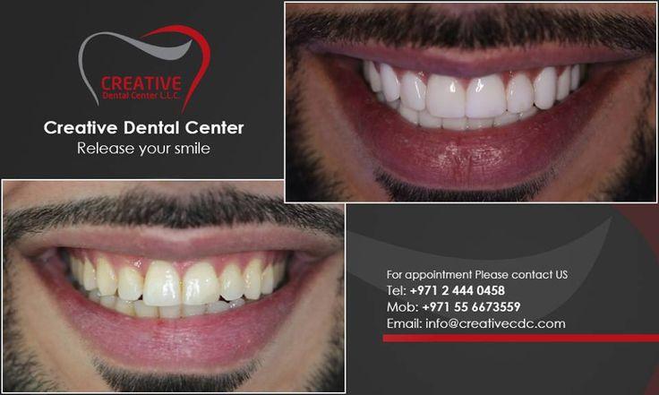 Creative Dental Center the elite dental center with the latest technology to simply help unleash your smile! مركز كريتف لطب الآسنان هي العيادة الوحيدة و الحصرية التي تقدم الخدمات العلاجية الراقية من آجل إطلاق جمال إبتسامتك!