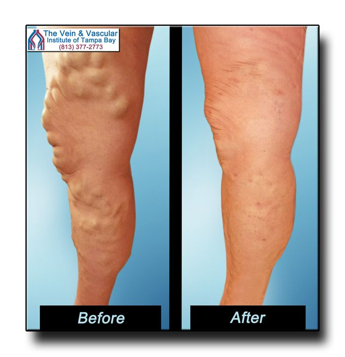 We're proud to bring our patients' legs back to great health using advanced varicose vein removal techniques.  For a Vein Consultation, give us a call at (813) 377-2773.  https://www.tampavascularsurgeon.com/tampa-varicose-vein-removal-pictures/
