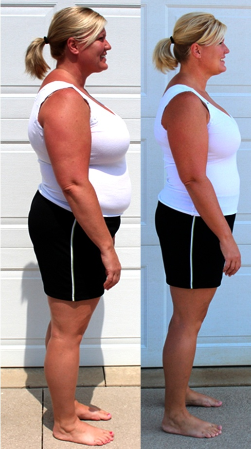 Carla J's Before and After Pictures from the Get Slim Now Transformation!