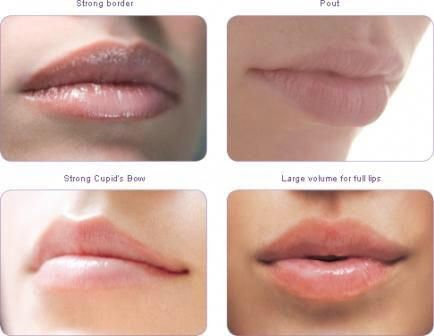 bottom left: strong cupid's bow #fillers