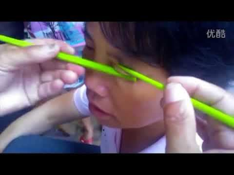blackheads removal, blackheads in ear, blackheads removal mask, blackheads behind ear, blackheads popping, blackheads on face, blackheads 2017, blackheads dr pimple popper, drpimplepopper, zit, skin, incision and drainage, pimple, how to pop a pimple, drsandralee, blackhead, sandra lee, medical...  https://www.crazytech.eu.org/popping-blackheads-on-the-face-how-to-remove-acne-easy-4/