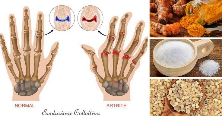 Come alleviare l'Artrite alle Mani con esercizi fai-da-te e rimedi naturali.