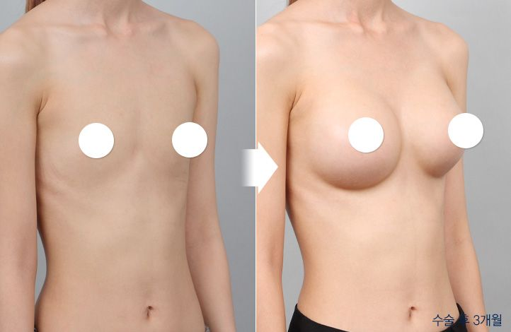 {PATIENT 2} 45 Degree view of before and after breast surgery. For more infomation go to: en.daprs.com #DAplasticsurgery #plasticsurgery #cosmeticsurgery #beauty #koreabeauty #summerbody #summerconfidence #confidence #selfesteem #trnsformation #koreaplasticsurgery #korea #gangnam #plasicsurgeryclinic #beforeafter #beforeandafter