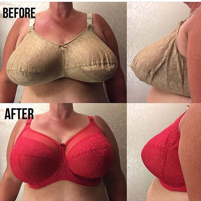 2017 was the year that we started showcasing our before & after photos and you guys seem to really love them! Here is a look back at a few of my favorites! ❤️❤️❤️ As simple as something like a new bra can seem, it has the power to change how you look and feel about yourself! #beforeandafter #brafitting #brafitspecialist #lingerieforallsizes #langleybc #ourfittersareawesome