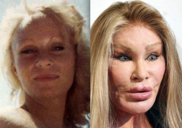 And Cat After Surgery Plastic Woman
