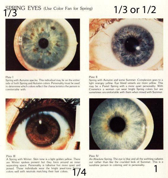 #eyes bernice kentner's a rainbow in your eyes book. (on pg 29, kentner wrote she did not know who created typing by eye pattern.) YIN YANG TYPING BY EYE PATTERN. spring eye pattern = starburst (spring corresponds to #type1  in related systems)