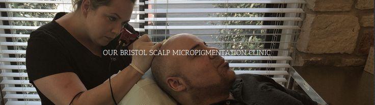 Bristol scalp micropigmentation treatment centre