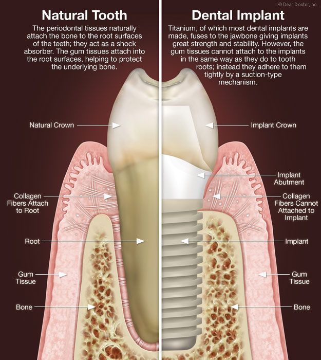 Oral surgery tooth extraction cost consider, that