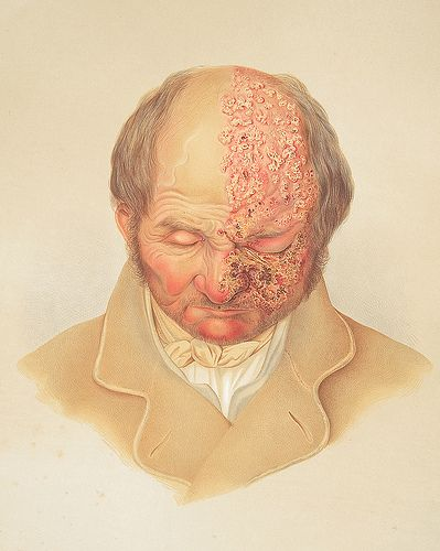 Appears In: Hebra, Ferdinand, Ritter von, 1816-1880. Atlas der Hautkrankheiten  Image Description: Image of a lithograph from Hebra's Atlas, pt. 6, pl. 7, showing a bald man, his head slightly bent down, with herpes zoster (shingles) on face and pate {Causes|Symptoms, Solutions, Cures, #herpes Check here: http://cosmosale.com/herpes/