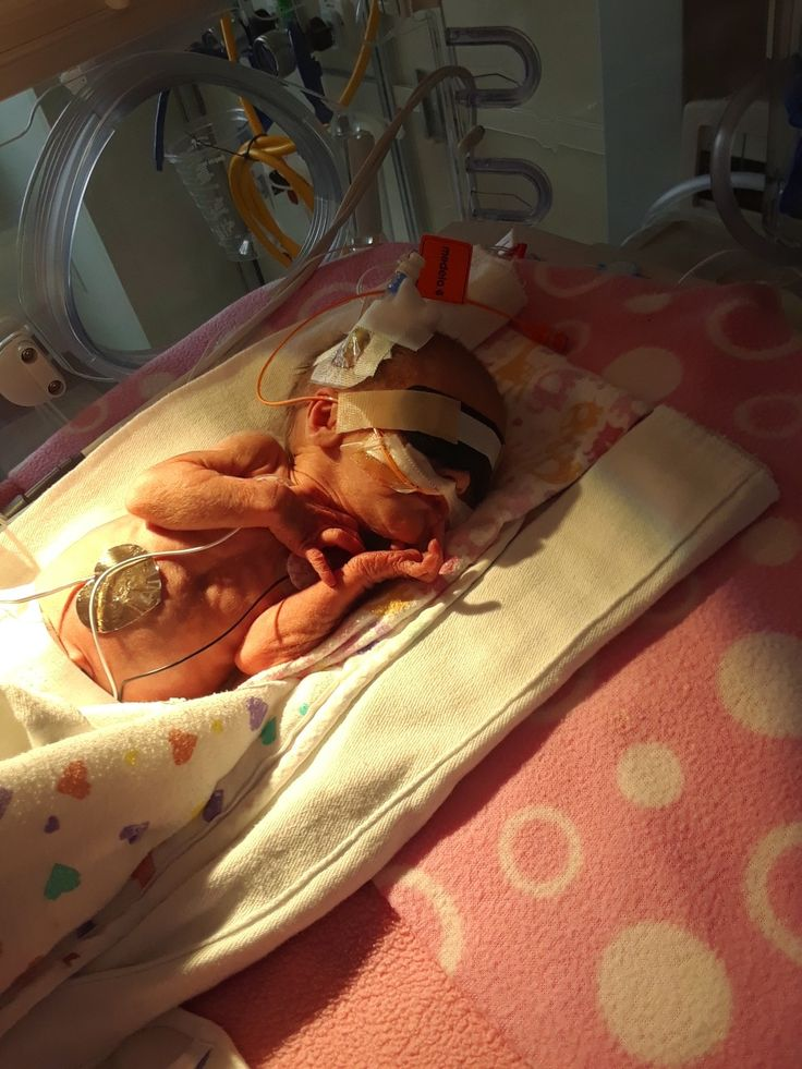 My little Sophie Taylor. #preemie #nicu