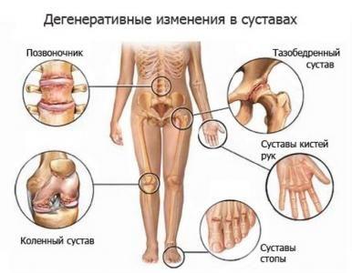 10 простых и эффективных средств лечения артрита. Обсуждение на LiveInternet - Российский Сервис Онлайн-Дневников