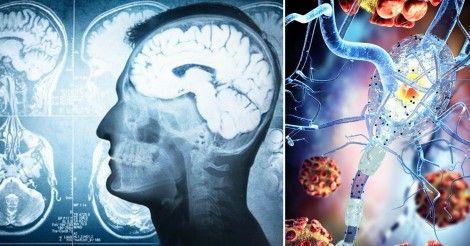 10+avisos+que+te+da+tu+cuerpo+antes+de+un+infarto+cerebral
