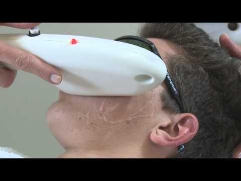 IPL Acne Clearing Treatment BIODROGA MD -  Akne Behandlung mit IPL (Intense Pulsed Light)  - #German