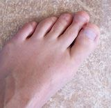 What is Morton's Toe? Morton's Toe Can Lead to Foot Pain