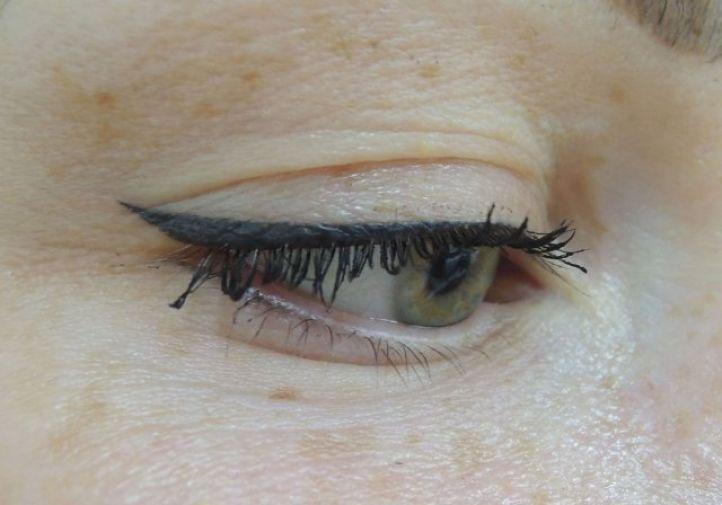 Permanent eyeliner tattoo