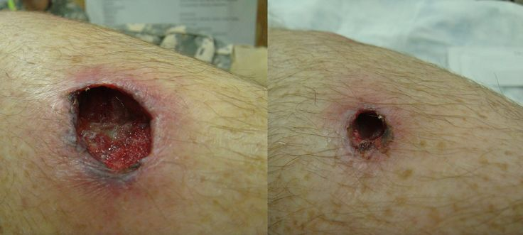 Through and Through Gunshot Wound | Flickr - Photo Sharing ...