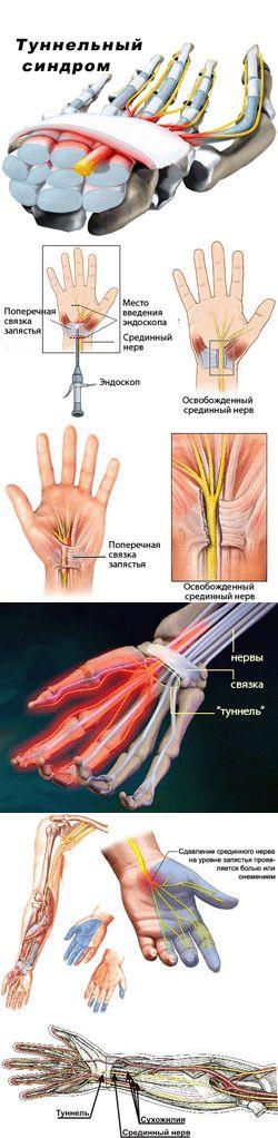 Что такое туннельный синдром?Под определением туннельный синдром объединяют большую группу заболеваний периферических нервных стволов, вызванных ущемлением нервов в тех или иных естественных каналах (туннелях), образованных костями, мышцами и сухожилиями человеческого организма. Описано несколько десятков туннельных синдромов. Одни встречаются часто (к примеру, синдром запястного канала обнаруживают у 1% населения планеты), а некоторые – крайне редко и известны лишь узким специалистам.