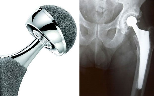 Experts have called for an end to secrecy over the regulation of medical   devices like hip implants and said safety data should be published online so   that patients can make up their own minds.