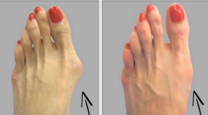 Для этого Вам не нужно хирургии: избавиться от бурсита большого пальца стопы естественно, используя только один ингредиент!     Я забы...