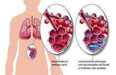 Une alimentation adaptée permet de compléter le traitement contre la pneumonie. Voici les aliments pour soigner la pneumonie de manière efficace.