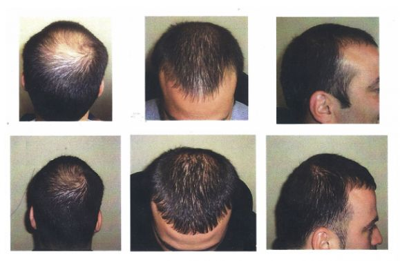 The hair transplant cost in Ahmedabad is very affordable and any common person can afford it. FUE hair transplant is preferred by most of the people of Ahmedabad and the cost of hair transplant may start from Rs. 35,000/-. The cost of FUT hair transplantation will be different from that of FUE hair transplant. Visit: http://clinicspots.com/hair-loss/India/Ahmedabad/hair-transplant/