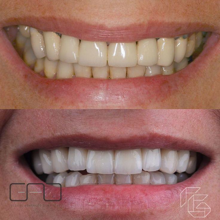 Harmony between teeth after bone graft implants zirconia bridge #cyrilgaillard #gadcenter #gadcab #antiaging #beauty #esthetic #ceramic #veneers #facettes #smile #newsmile #confidence #lovemyjob #bordeaux #geneva #dubai #lips #wornteeth #biology #function #invisalign #implant #LI