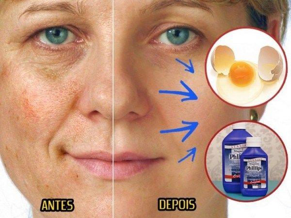 As manchas na pele podem existir desde a nascença ou surgir ao longo da vida, devido a causas como exposição solar excessiva, envelhecimento da pele, alergias ou problemas