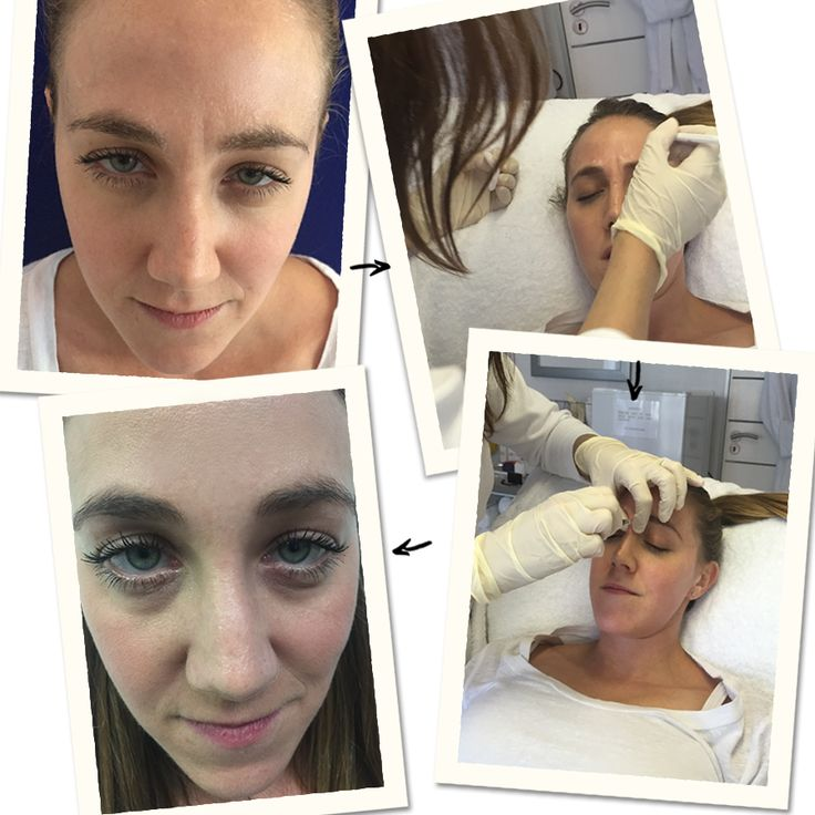 The truth about Botox: Our review  To clear up any negative connotations that we and many other people may have with regards to Botox, our Beauty Editor decided to try it out for herself at Skin and Body Renewal. Keep reading - http://bit.ly/1KhiDrW