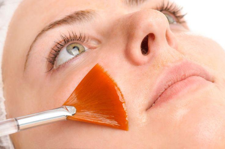 Домашние маски для пилинга — всего 2 ингредиента и какой эффект!