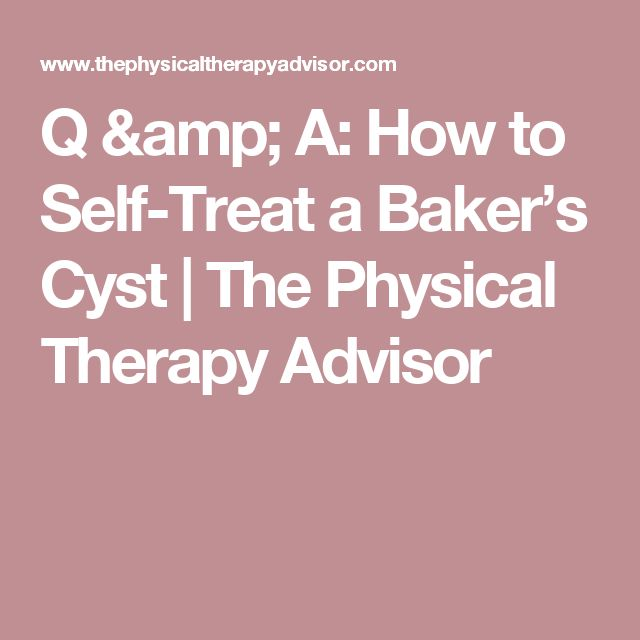 Q & A: How to Self-Treat a Baker's Cyst | The Physical Therapy Advisor