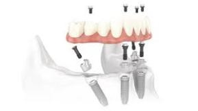 Although there is a guideline for dental implants, an affordable dental implant requires the best treatment plan which your dentist can only decide for you. Dental hospitals in Las Vegas will enable you to have your affordable new teeth in the best and fastest possible way.