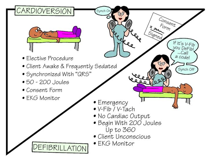 """Cardioversion is a corrective procedure where an electrical shock is delivered to the heart to convert, or change, an abnormal heart rhythm back to normal sinus rhythm. Most elective or """"non-emergency"""" cardioversions are performed to treat atrial fibrillation (A Fib) or atrial flutter (AFL), non-life threatening abnormal rhythms in the top of the heart. Defibrillation …"""