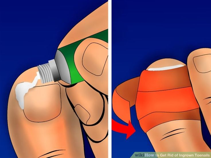 Image titled Get Rid of Ingrown Toenails Step 5