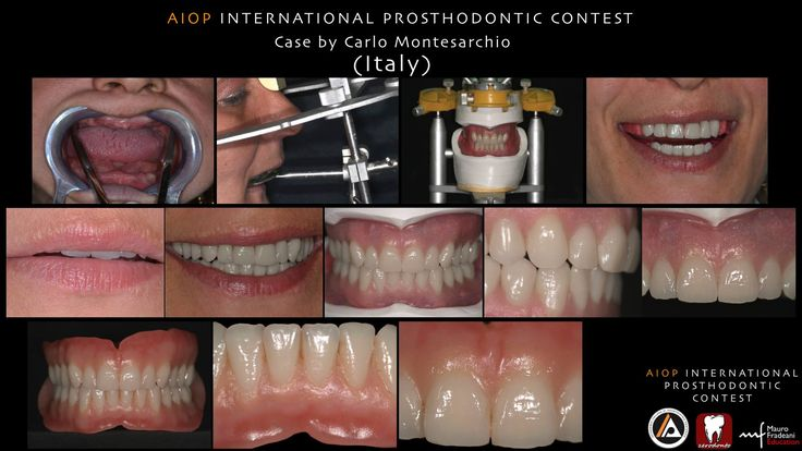 AIOP INTERNATIONAL PROSTHODONTIC CONTEST: The prosthesis and the face. Case by Carlo Montesarchio, Italy.