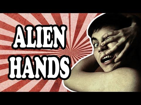 The Curious Case of Alien Hand Syndrome - http://bestnewsarchive.ca/the-curious-case-of-alien-hand-syndrome/