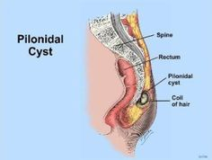 Natural Homeopathic Remedies for Pilonidal Cyst
