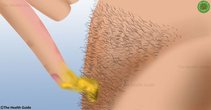 Share this post:TwitterFacebookGoogle+PinterestLinkedinEmailAlthough the most common ways to remove body hair are waxing or shaving, they usually have certain side effects like scarring, redness, etc. Believe it or not, there is another, 100% effective method for removal of bodily hair. The method is painless and it will help you get rid of body hair once …