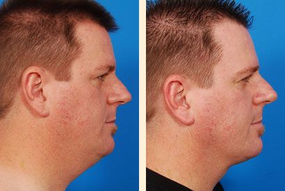 Liposuction Before and After: Neck